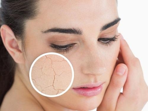 Phân biệt da khô và da mất nước, kem dưỡng ẩm cho ngày và đêm - da kho51