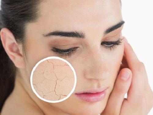 Cách trị da khô nhăn nứt nẻ vào mùa đông hiệu quả - da khô nứt nẻ