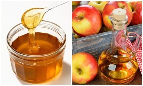 13 biện pháp khắc phục tại nhà để xoa dịu dạ dày nóng rát - giấm táo mật ong