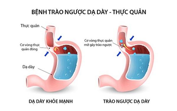 Sự khác biệt giữa dạ dày khỏe mạnh cùng dạ dày mắc phải tình trạng trào ngược