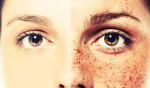 6 cách trị tàn nhang trên mặt cực kỳ hiệu quả tại nhà - AdobeStock 80471135 150x88