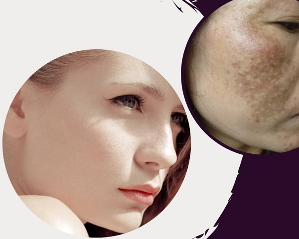 Collagen trị nám tàn nhang được hay không? - Collagen tri nam tan nhang 3