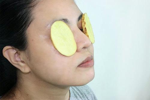 Cách làm giảm bọng mắt cực hay tại nhà