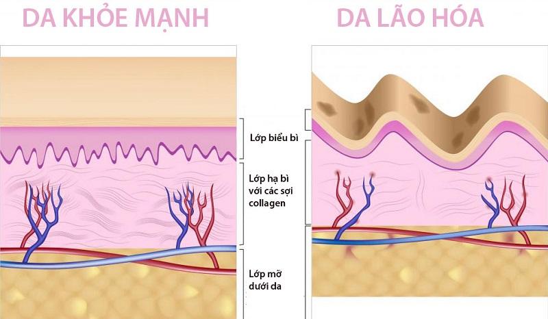 Collagen là chất gì? Tại sao phụ nữ cần bổ sung collagen?