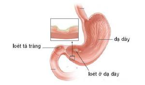 Cách phân biệt viêm loét dạ dày và viêm loét hành tá tràng - loet da day ta trang1 300x175