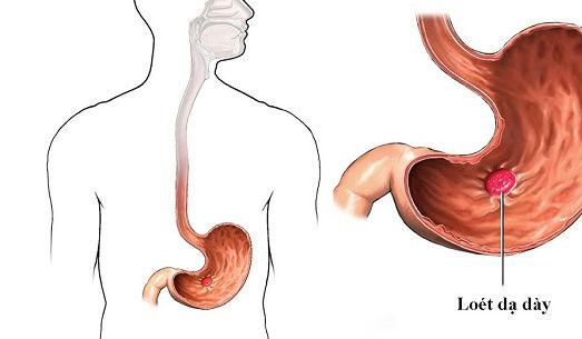 Cách phân biệt viêm loét dạ dày và viêm loét hành tá tràng