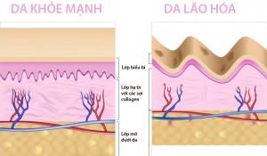 Uống Collagen có làm thay đổi nội tiết không? - Collagen DA 300x175