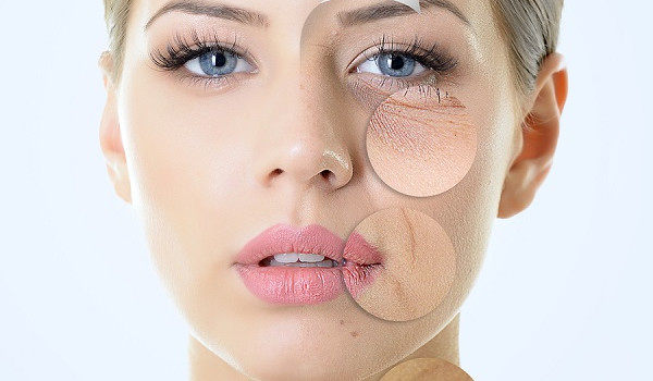 Dấu hiệu cơ thể thiếu hụt Collagen - kem chong lao hoa 3 1 600x350