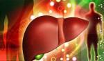Bệnh viêm gan mãn tính là gì? Cách phòng ngừa và điều trị viêm gan - viem gan man tinh1 150x88