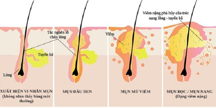 Collagen trị sẹo rỗ