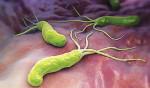 Làm sao biết dạ dày bị nhiễm vi khuẩn Hp? - xoan khuan Hp 150x88