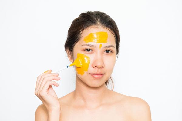 cách trị tàn nhang trên mặt cực kỳ hiệu quả tại nhà