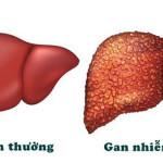 Bệnh gan nhiễm mỡ là gì? - gan nhiem mo 150x150