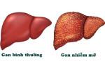Bệnh gan nhiễm mỡ là gì? - gan nhiem mo 150x88