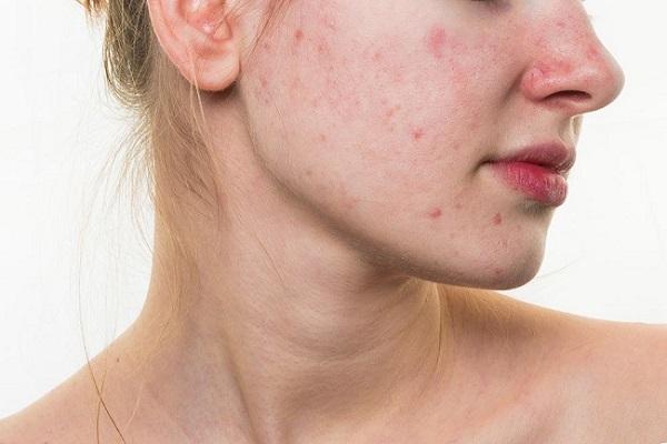 Kết quả hình ảnh cho các đốm đỏ dị ứng da mặt