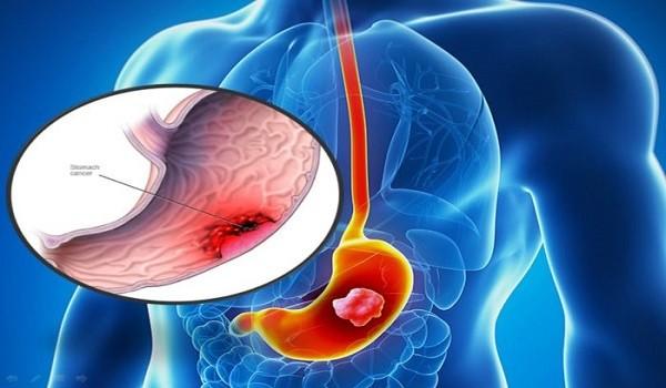 Ung thư dạ dày di căn gây nguy hiểm như thế nào? - ung thu da day di can 3 600x350