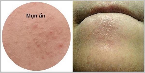 Mụn ẩn ở dưới da là gì?