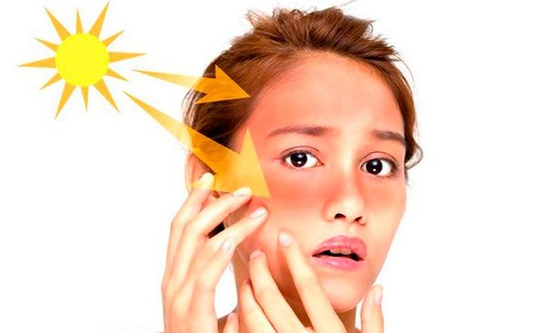 Nguyên nhân dẫn đến tình trạng da bị bào mòn- Ánh nắng mặt trời