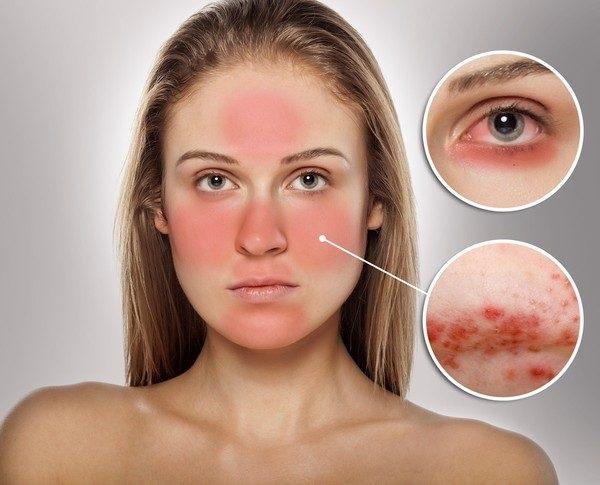 Nguyên nhân khiến da nhạy cảm và dễ kích ứng
