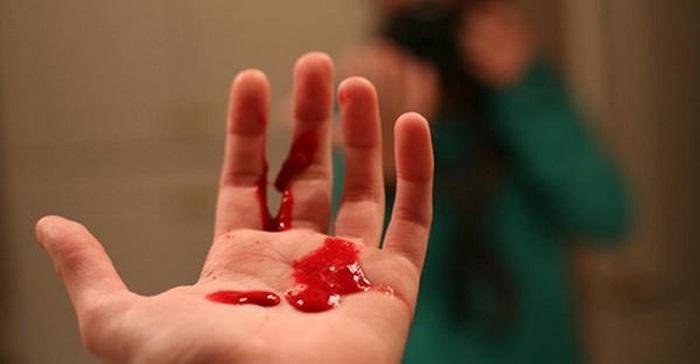 Chảy máu vết loét