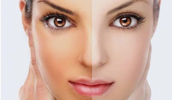 12 biện pháp loại bỏ sạm nắng khỏi mặt và da - da sam nang 600x350