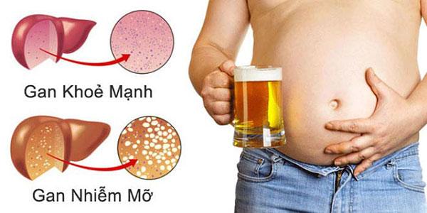 12 thực phẩm nên ăn khi bị bệnh gan nhiễm mỡ - gan nhiem mo
