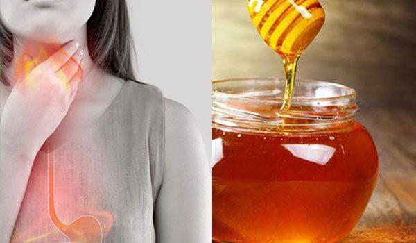 Mật ong có điều trị trào ngược acid được không? - trao nguoc mat ong 600x350